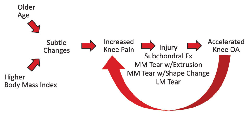 Figure 1. A conceptual model for the origin of accelerated knee OA.
