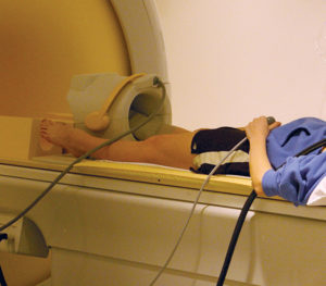 Figure 5: A dancer positioned supine, with her foot, ankle, and leg splinted, for entry into a Philips 3T MR scanner.