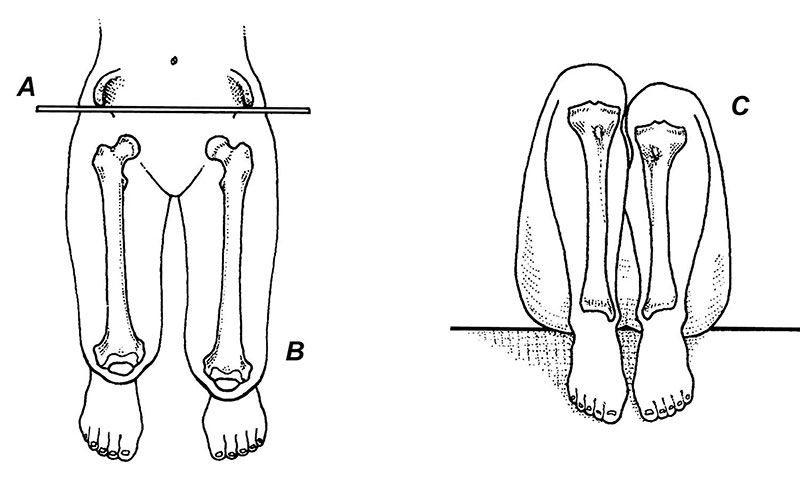 Figure 1. Allis test. The examiner manually aligns the ASIS (anterior superior iliac spine) of each limb so that they rest on the same frontal and transverse planes. The medial malleoli are then placed together, and femoral lengths are evaluated from above (left), while tibial lengths are deter- mined by comparing the levels of the tibial plateaus (right). (Reprinted with permission from reference 10.)