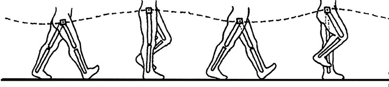 Figure 3. Pelvic rotation as a determinant of gait. A lateral view of the gait cycle with the knees and hips locked illustrates how the pathway of the center of mass creates an exaggerated sine wave, which is metabolically expensive because the hip abductors must raise and lower the center of mass through the exagerrated ranges. This type of sine wave pattern is more characteristic of a structural limb-length discrepancy than a functional one. (Adapted with permission from reference 10.)
