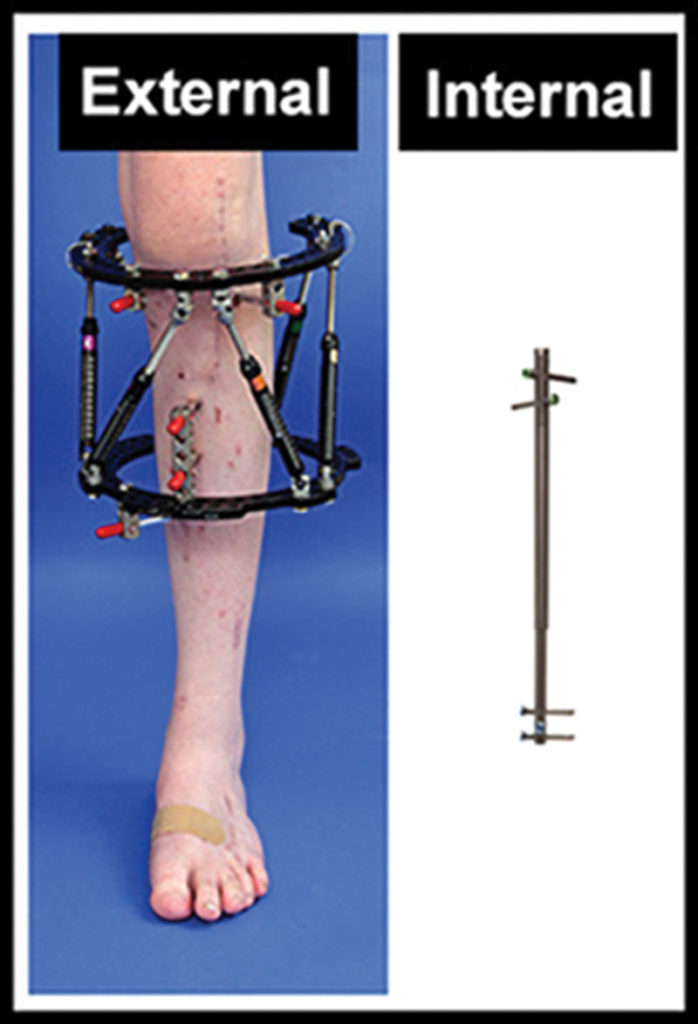 Figure 4. An adjustable intramedullary nail ac- tivated by an external magnet (right) offers an alternative to external fixation (left) for surgical limb lengthening. (Photo courtesy of John Herzenberg, MD.)
