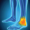 Radiofrequency-based arthroscopy in the ankle