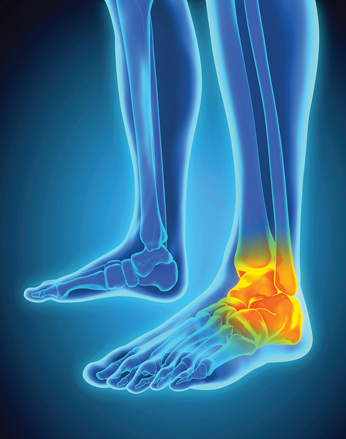 8Ankle-iStock_93053437_LARGE-copy