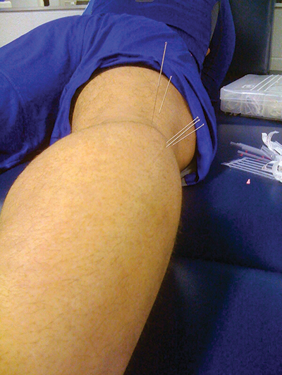 Figure 1. Professional baseball player being treated with dry needling for distal hamstring tendinopathy. (Photo courtesy of Sue Falsone, PT, MS, SCS, ATC, CSCS, COMT.)