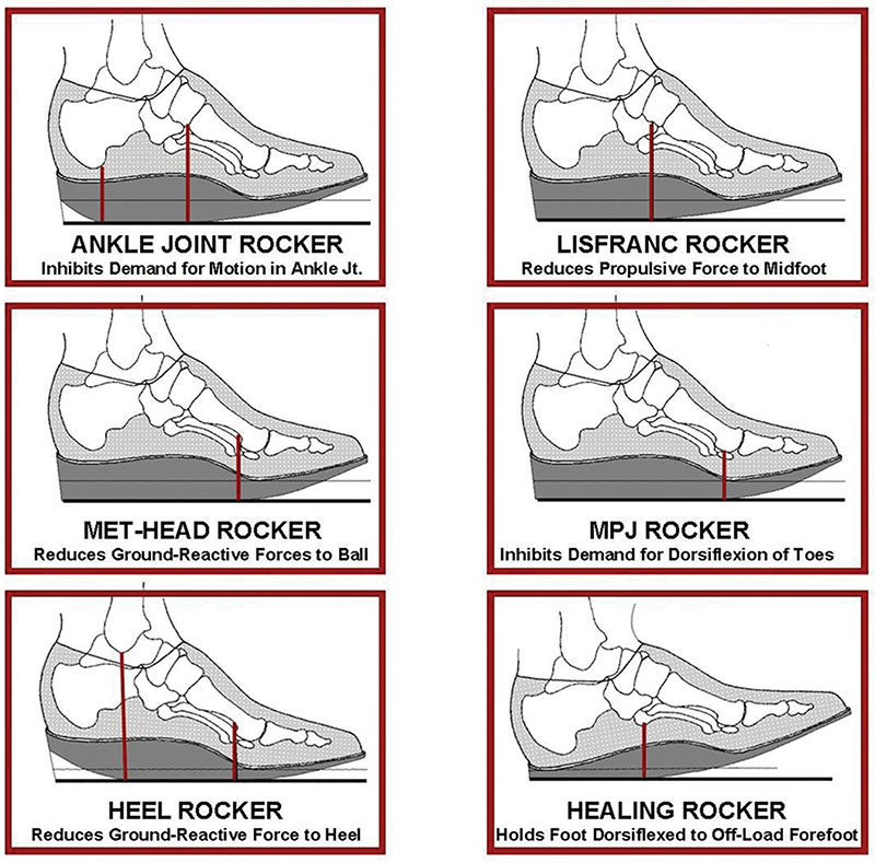 separation shoes 8ae1e 15848 Images illustrate different types of rockers, with fulcrum locations  indicated by vertical red lines. (Images courtesy of Arnie Davis, CPed.)