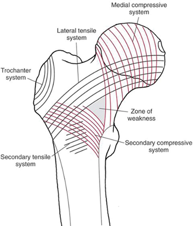 Biomechanics of femoral neck fractures in runners | Lower Extremity ...