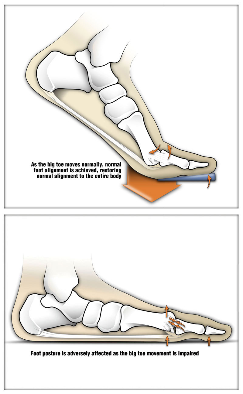 Orthotic management tactics for hallux limitus | Lower Extremity ...