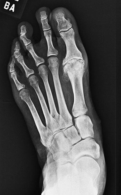 mtp osteoarthritis treatment