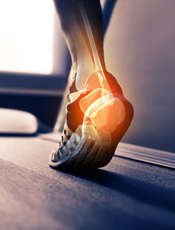 Is it the foot— or the footwear? Considerations for protecting a diabetic foot | Lower Extremity Review Magazine