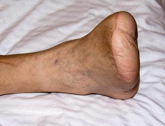 People With Diabetes Foot Complications Do Not Recall Their