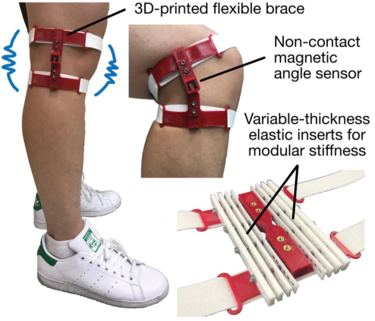 3d Printed Knee Brace To Aid Rehab Elderly Lower Extremity Review