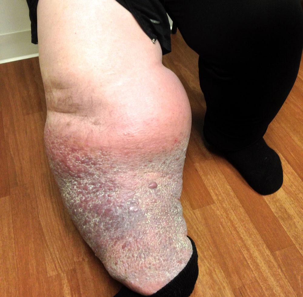 papillomatosis of legs