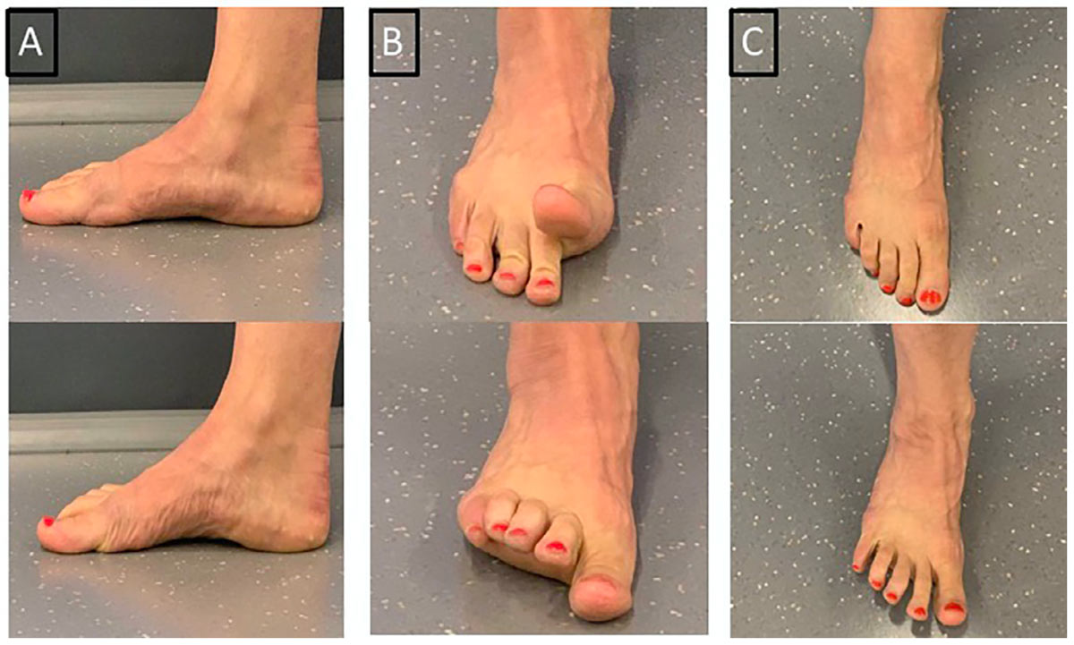 Using Shockwave, Foot Core Exercises to Manage Tibialis Posterior ...
